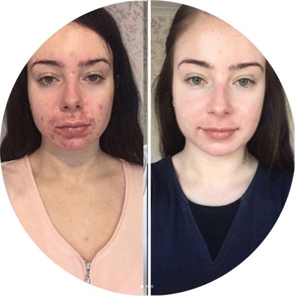 Ahorro Thanaka Skincare
