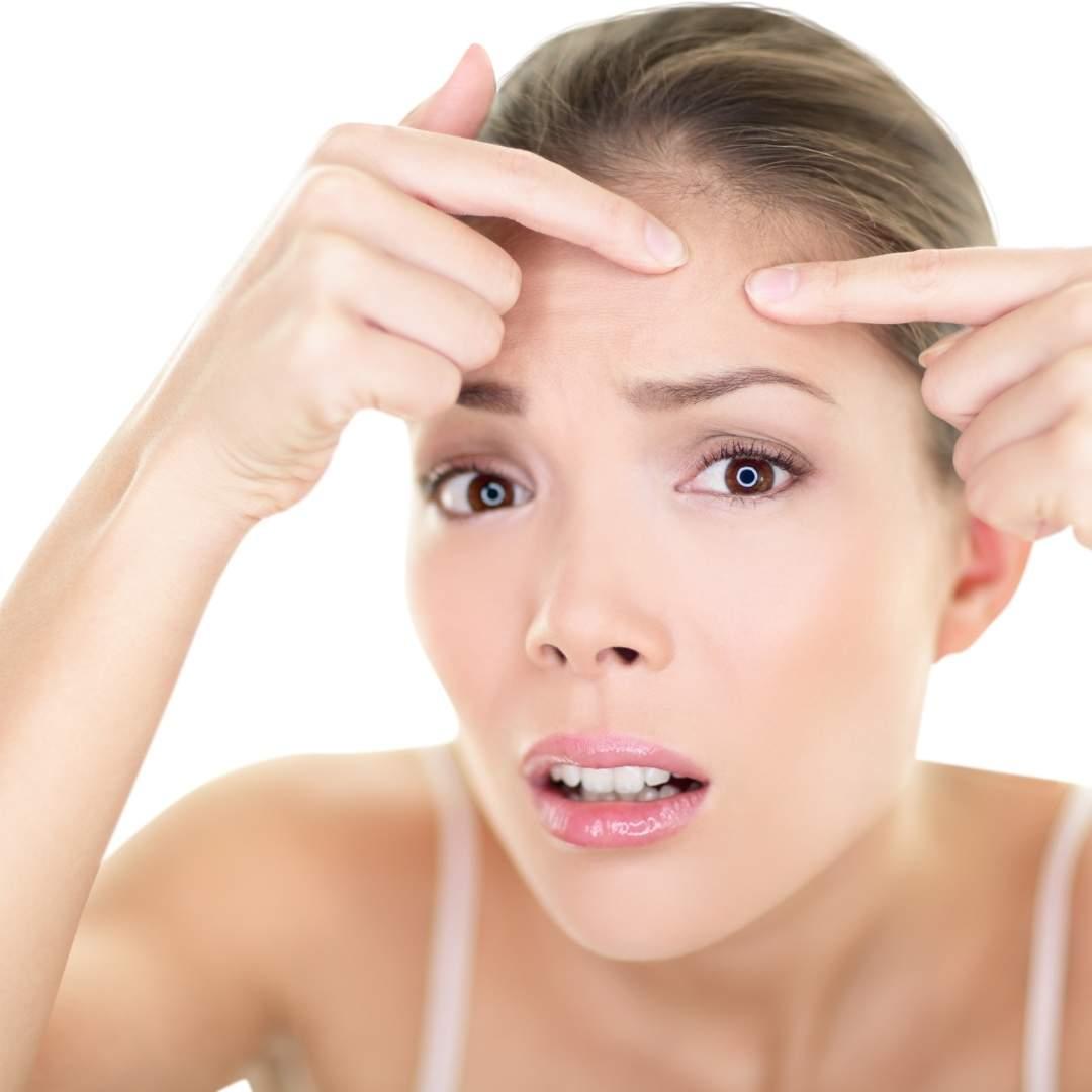 Crema y Ozono de Thanaka para acné y cicatrices