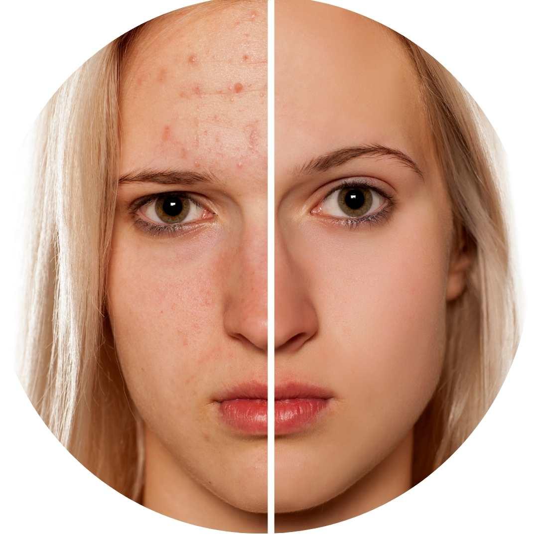 Rutina acné, Acné, cosmetico, Thanaka cosmético, melasma, dermis, rosacea